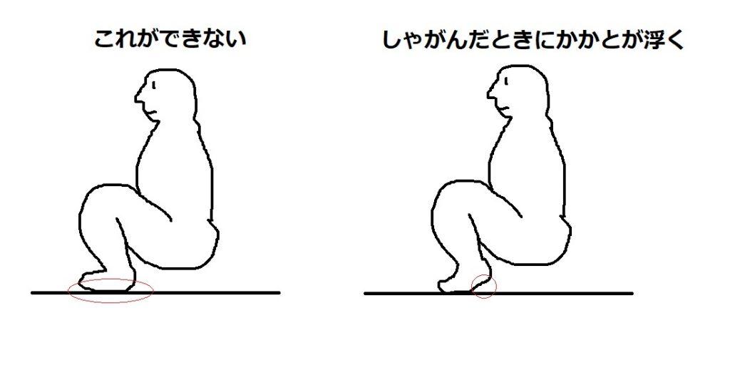 【雑記】しゃがんだとき足の裏を地面につけられないのは、足首が固いからでなく反り腰のせいだったっぽい